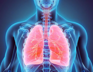 pulmonary disorder image
