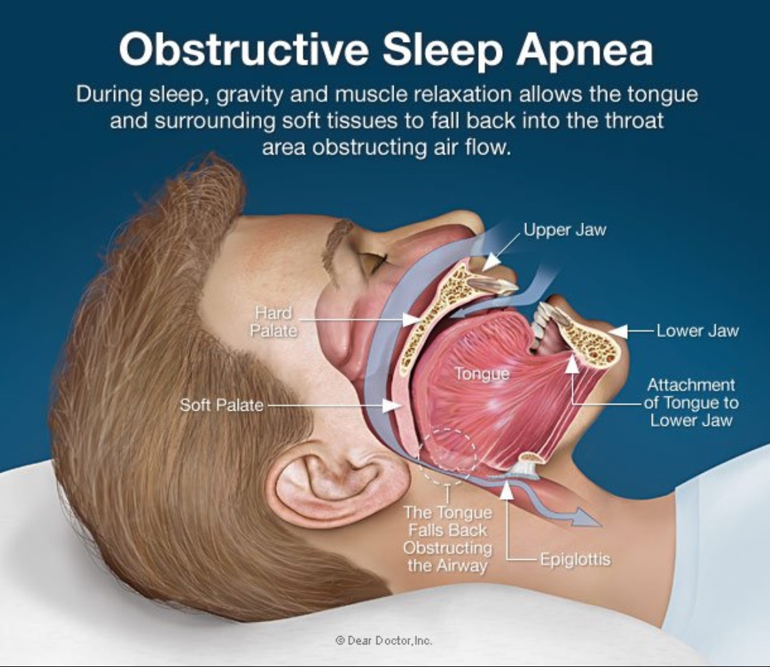 Watch Do You Have Sleep Apnea Everything to Know About How to Get Screened and Treated video